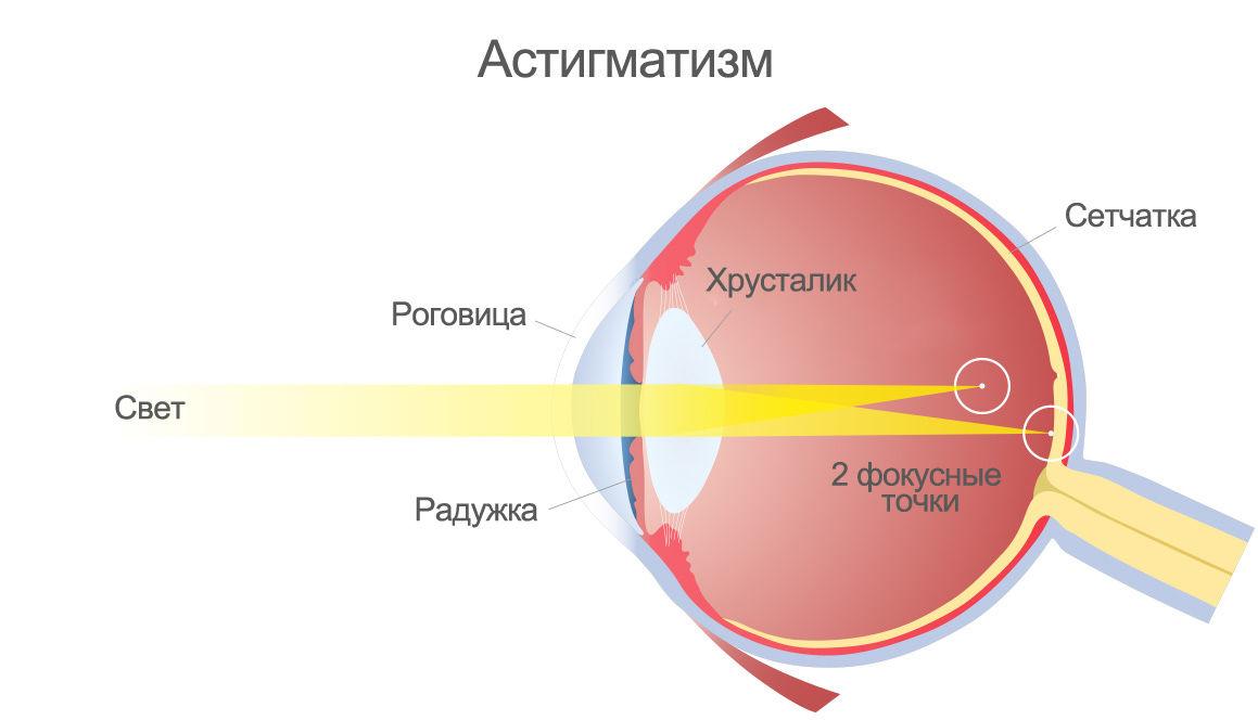 Наличие двух фокусных точек — последствие искривления роговицы