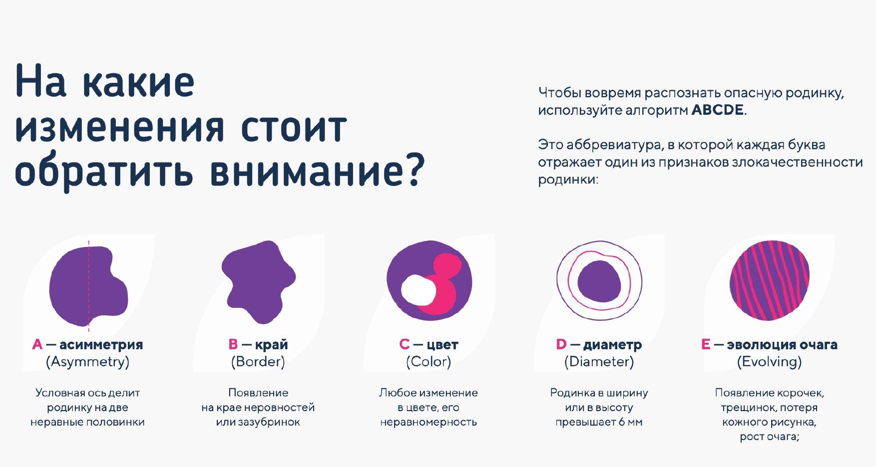 Как оценить родинку по методу ABCDE © Инфографика предоставлена пресс-службой проекта «Живи без страха»