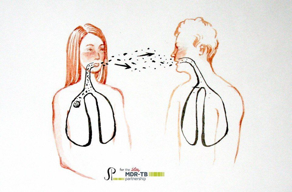 Иллюстраций из брошюры «Ты и туберкулез»