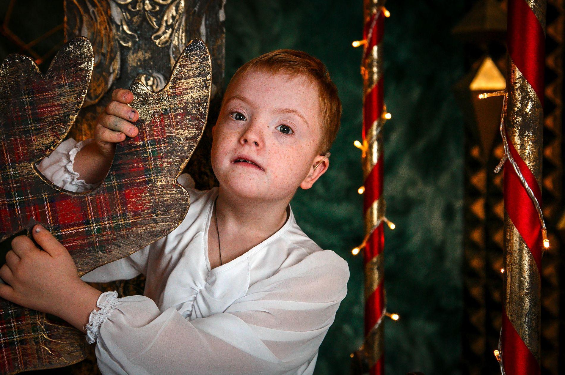 Адаптация для детей с синдромом дауна краснодар thumbnail