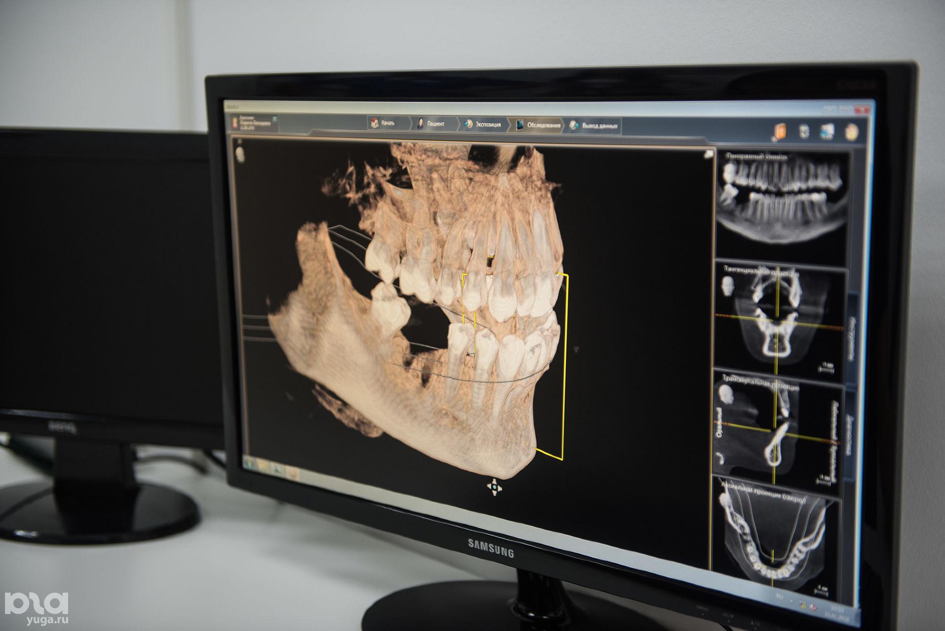 3D-модель челюсти, сделанная с помощью томографа в клинике © Фото Елены Синеок, Юга.ру